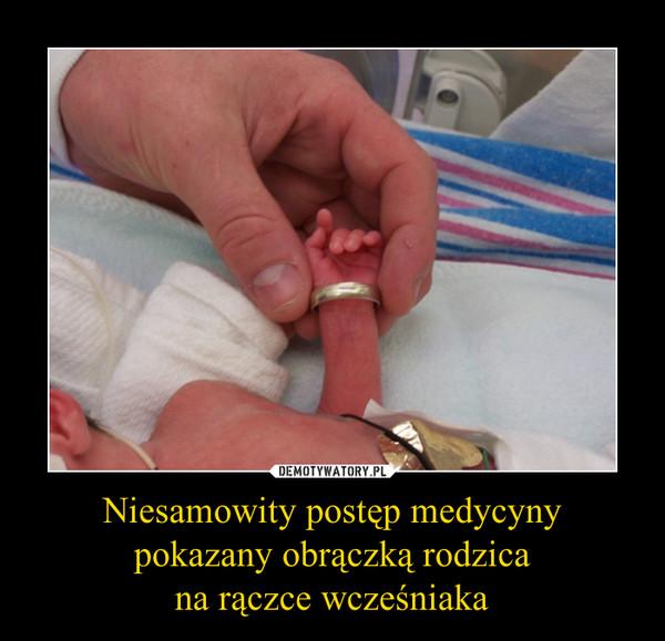 Niesamowity postęp medycyny pokazany obrączką rodzicana rączce wcześniaka –