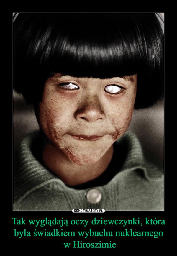 Tak wyglądają oczy dziewczynki, która była świadkiem wybuchu nuklearnego w Hiroszimie –