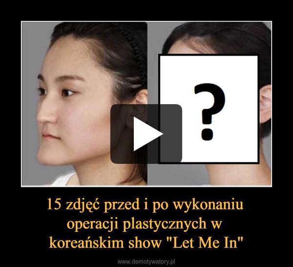 """15 zdjęć przed i po wykonaniu operacji plastycznych w koreańskim show """"Let Me In"""" –"""