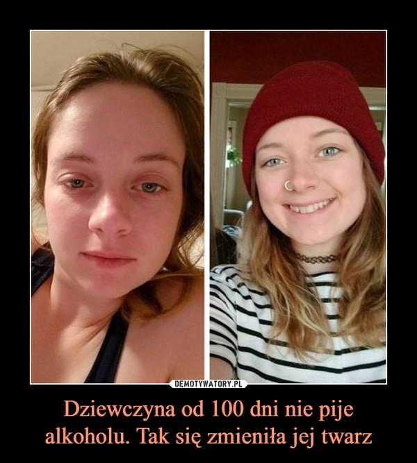 Dziewczyna od 100 dni nie pije alkoholu. Tak się zmieniła jej twarz –