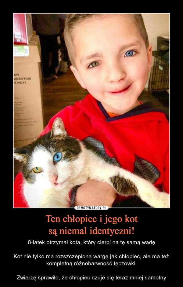 Ten chłopiec i jego kotsą niemal identyczni! – 8-latek otrzymał kota, który cierpi na tę samą wadęKot nie tylko ma rozszczepioną wargę jak chłopiec, ale ma też kompletną różnobarwność tęczówki.Zwierzę sprawiło, że chłopiec czuje się teraz mniej samotny