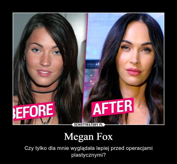 Megan Fox – Czy tylko dla mnie wyglądała lepiej przed operacjami plastycznymi?