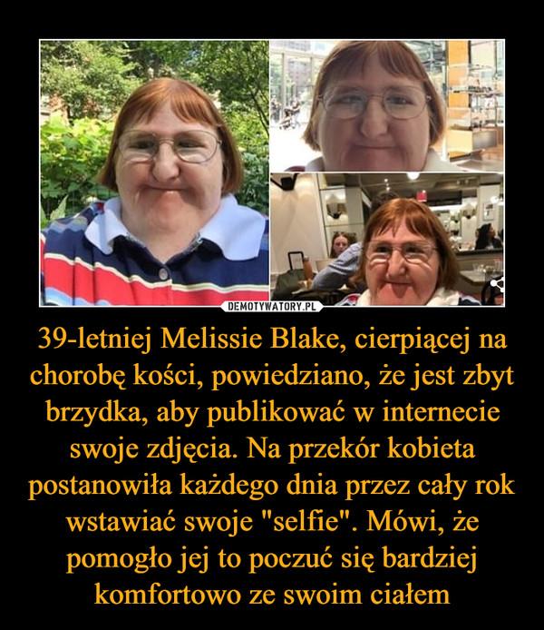 """39-letniej Melissie Blake, cierpiącej na chorobę kości, powiedziano, że jest zbyt brzydka, aby publikować w internecie swoje zdjęcia. Na przekór kobieta postanowiła każdego dnia przez cały rok wstawiać swoje """"selfie"""". Mówi, że pomogło jej to poczuć się bardziej komfortowo ze swoim ciałem –"""