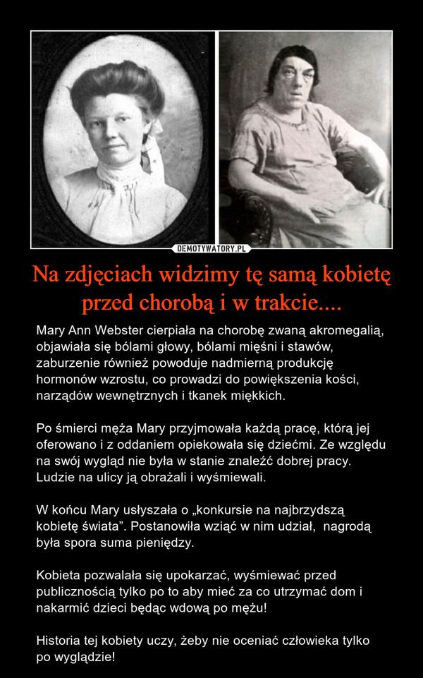 """Na zdjęciach widzimy tę samą kobietę przed chorobą i w trakcie.... – Mary Ann Webster cierpiała na chorobę zwaną akromegalią, objawiała się bólami głowy, bólami mięśni i stawów, zaburzenie również powoduje nadmierną produkcję hormonów wzrostu, co prowadzi do powiększenia kości, narządów wewnętrznych i tkanek miękkich.Po śmierci męża Mary przyjmowała każdą pracę, którą jej oferowano i z oddaniem opiekowała się dziećmi. Ze względu na swój wygląd nie była w stanie znaleźć dobrej pracy. Ludzie na ulicy ją obrażali i wyśmiewali.W końcu Mary usłyszała o """"konkursie na najbrzydszą kobietę świata"""". Postanowiła wziąć w nim udział,  nagrodą była spora suma pieniędzy. Kobieta pozwalała się upokarzać, wyśmiewać przed publicznością tylko po to aby mieć za co utrzymać dom i nakarmić dzieci będąc wdową po mężu!Historia tej kobiety uczy, żeby nie oceniać człowieka tylko po wyglądzie!"""