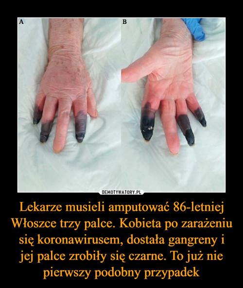 Lekarze musieli amputować 86-letniej Włoszce trzy palce. Kobieta po zarażeniu się koronawirusem, dostała gangreny i jej palce zrobiły się czarne. To już nie pierwszy podobny przypadek